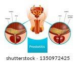 prostatitis scheme with human... | Shutterstock .eps vector #1350972425