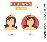 concept of laser skin... | Shutterstock .eps vector #1355946695