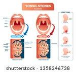 tonsil stones vector... | Shutterstock .eps vector #1358246738