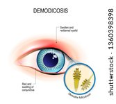 demodicosis of eyelid and red... | Shutterstock . vector #1360398398