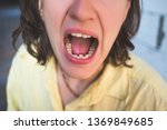 photo of crooked woman teeth   Shutterstock . vector #1369849685