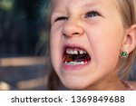 little girl with orthodontics...   Shutterstock . vector #1369849688