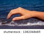 Female Hand With Red Sunburn...
