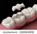 Inlay Ceramic Crown Fixation...