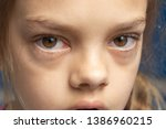 irritated eyes of a girl who... | Shutterstock . vector #1386960215