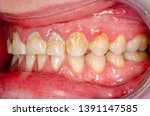 closeup of frontal teeth with...   Shutterstock . vector #1391147585