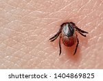Small photo of Sucking tick Macro photo on human skin. Ixodes ricinus. Bloated parasite bitten into pink irritated epidermis. Small red drops. Dangerous insect mite. Encephalitis, Lyme disease infection.