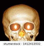 Human Skull On Fire. Hell Fire...