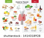 thyroid nutrition infographic... | Shutterstock .eps vector #1414318928