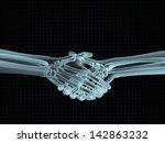 X Ray Image Of Hand Shake