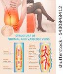 varicose vein on a female...   Shutterstock . vector #1430848412