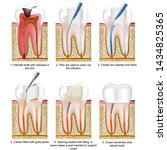 Root Canal Treatment Medical...
