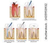 root canal treatment medical... | Shutterstock .eps vector #1435953932