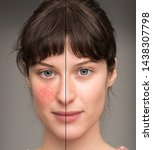Small photo of A before and after view of a beautiful young Caucasian girl suffering with rosacea. Portrait view showing results of successful laser surgery.