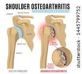 shoulder osteoarthritis...   Shutterstock .eps vector #1445799752