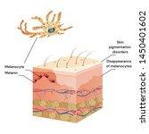 skin cut medicine problem skin... | Shutterstock .eps vector #1450401602