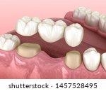 Dental Bridge Of 3 Teeth Over...