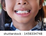 stacked front tooth  a problem... | Shutterstock . vector #1458334748