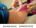A phlebotomist getting blood...