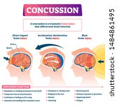 concussion vector illustration. ... | Shutterstock .eps vector #1484861495