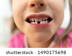 little girl child changes teeth | Shutterstock . vector #1490175698