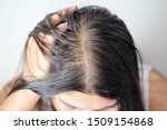Women With Thin Hair There Are...