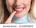 Small photo of Woman with gum inflammation, closeup
