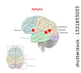 aphasia. is an inability to...   Shutterstock .eps vector #1531855055