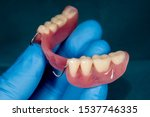 Denture. Partial Removable...