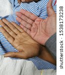 Small photo of Comparing two hands, normal and patient with anaemia.