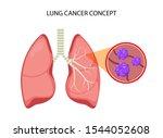 lung cancer vector concept...   Shutterstock .eps vector #1544052608