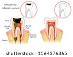 Root Canal Treatment. Infected...