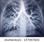 bronchoscopy image. chest x ray.... | Shutterstock . vector #157047602