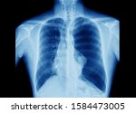 Chest X Ray Showing Tension...
