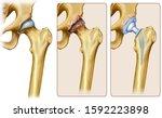 Schematic Illustration Of Hip...