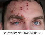 Man With Herpes Zoster ...