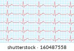 heart normal sinus rhythm on... | Shutterstock .eps vector #160487558