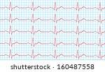 heart normal sinus rhythm on...   Shutterstock .eps vector #160487558