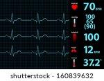 modern electrocardiogram... | Shutterstock .eps vector #160839632