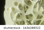 Bone Affected With Osteoporosis ...
