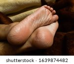 Small photo of Cracked heels of a woman, heel fissures, are a common foot condition caused from dry skin in winter accompanied by thickened skin. Medical science, skin dieseases, cold cream