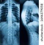 Small photo of X-ray of the spine of a man with a stoop in two projections in full view and profile