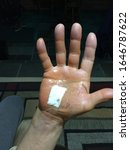 Small photo of Carpal tunnel surgery on right hand, carpal tunnel surgery done correctly,median nerve surgery