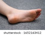 Foot wart, verrucas plantar on the foot of a child from Sweden. A  decease caused by the Human papillomavirus and often spread at communal showers or by sharing socks with others.