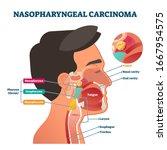 nasopharyngeal carcinoma tumor  ... | Shutterstock .eps vector #1667954575