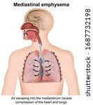 mediastinal emphysema medical...   Shutterstock .eps vector #1687732198