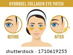 before and after hydrogel eye... | Shutterstock .eps vector #1710619255