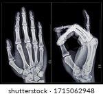 X Ray Fluoroscopy Of Human...
