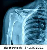 Photo Of X Ray Human Shoulder