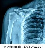 Photo Of X Ray Human Shoulder
